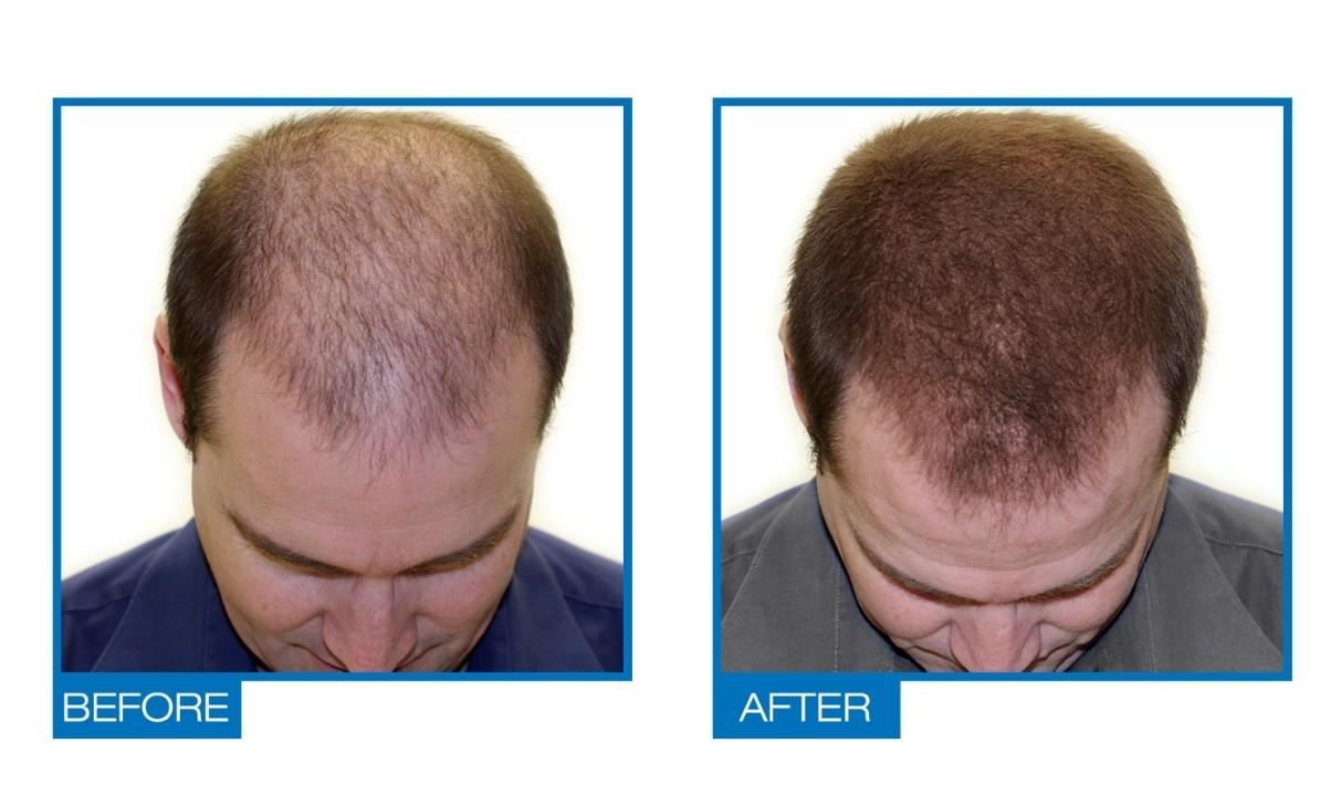What Are Natural Ways To Regrow Hair